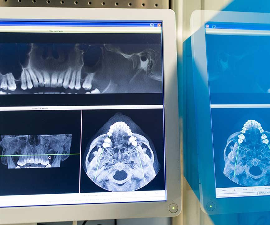 ¿Puedo llevar implantes si tengo gingivitis?