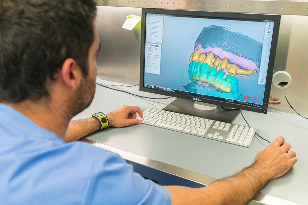 Recupera tus dientes en un día - Implantes inmediatos en Oviedo