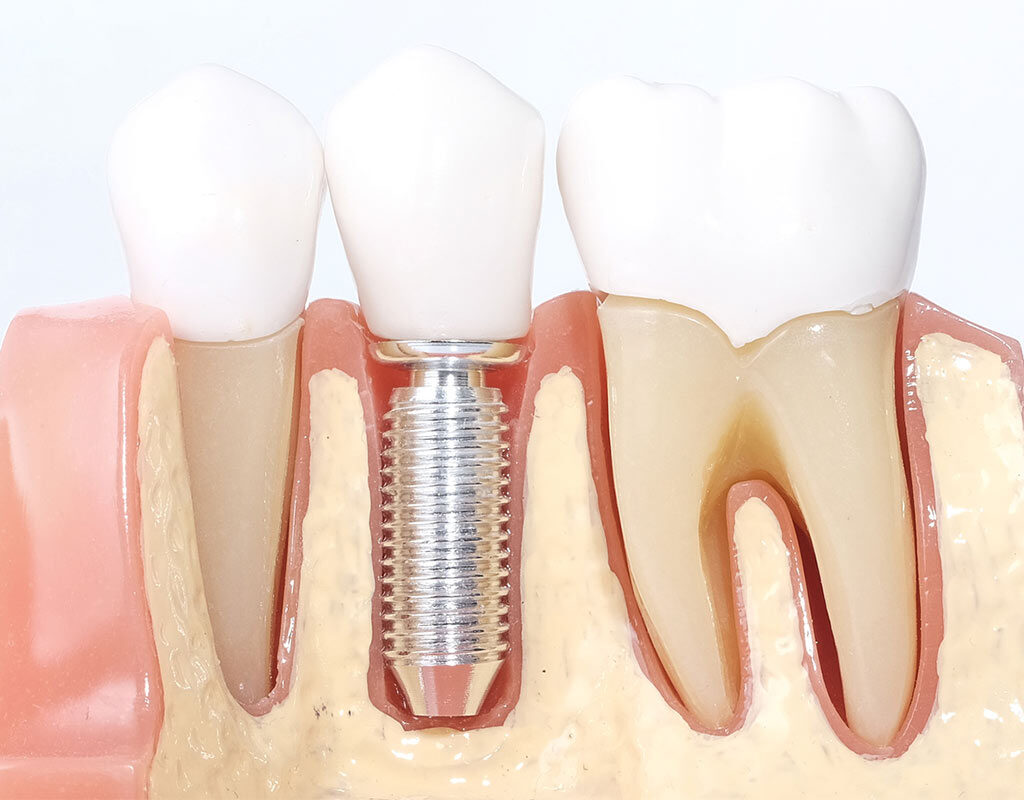 para-que-sirven-implantes