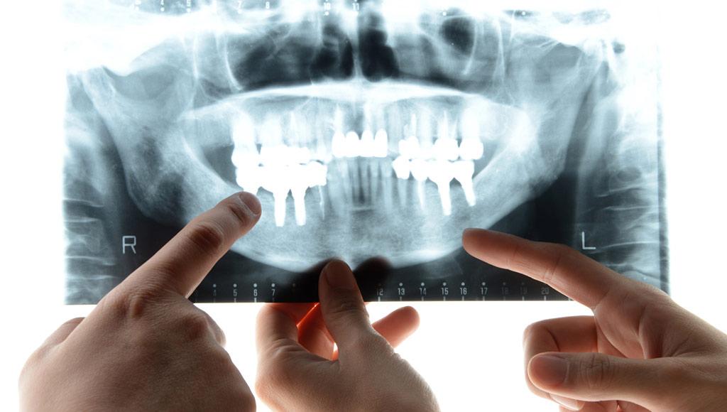 precio-implantes-dentales