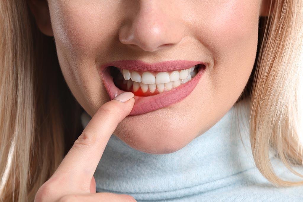Tratamientos para la periodontitis - Clínica Sicilia
